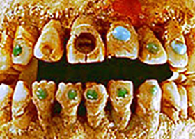 EARLY GEMSTONE DENTAL IMPLANTS