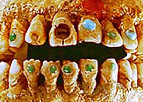 کاشت سنگ های قیمتی در دندان های انسان های اولیه